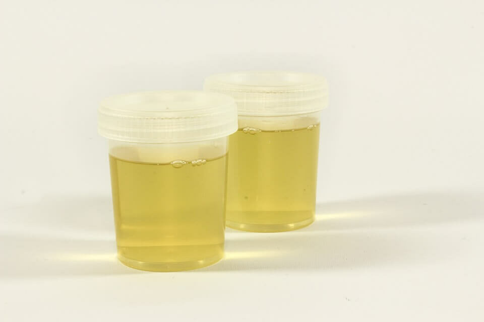 How to Overcome Urophobia or the Fear of Urine or Urinating?